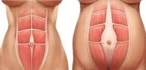 diastasis abdominal2